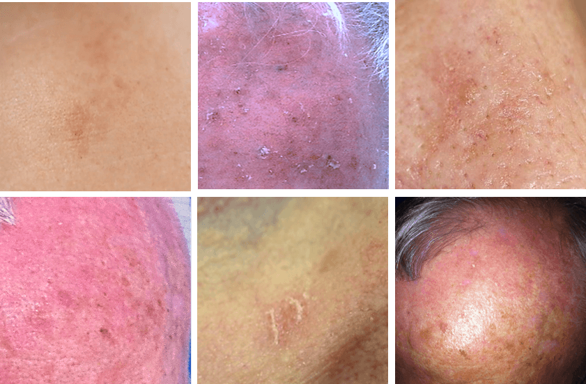 AK stages Actinic keratoses of varying severity